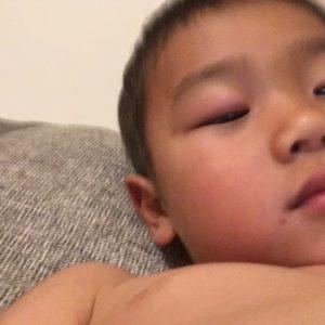 目 が 腫れる 赤ちゃん 突然、子どもの片目まぶたが腫れる。何の病気?何科に行く?かゆみ・痛みも|医師監修